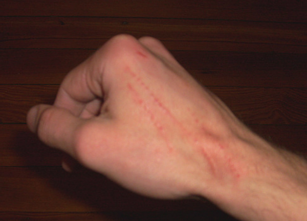 A cat scratch on someone's hand.