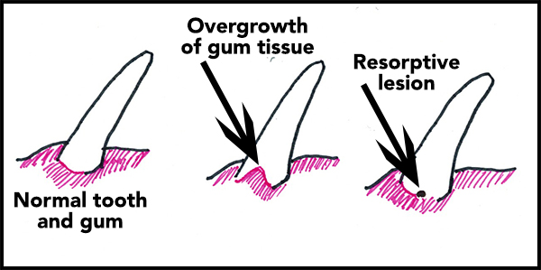 As you can see in this illustration, gum tissue can grow up around a resorptive lesion, or your vet may see a tiny spot on your cat's tooth.