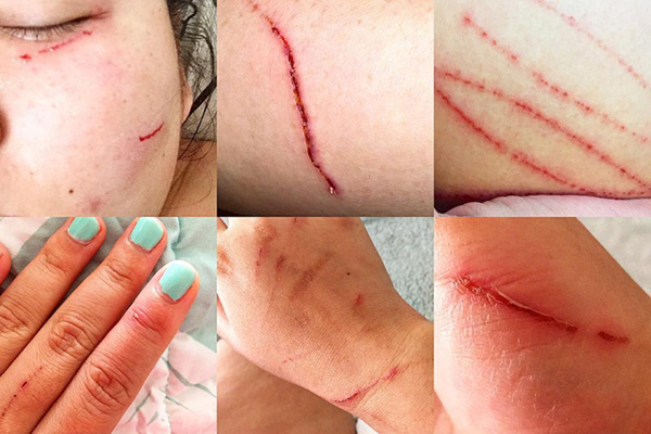 Nancy's injuries after a dog attack.
