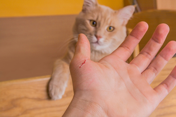 A man with a cat scratch on his hand from an orange cat.